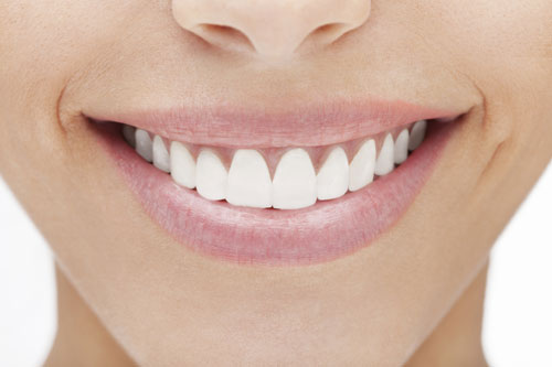 Veneers at Hammer Dental Associates